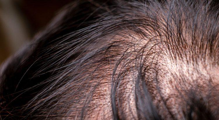 ricrescita fast plus lozione anticaduta per capelli